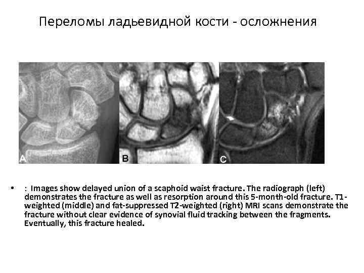 Переломы ладьевидной кости осложнения • : Images show delayed union of a scaphoid waist