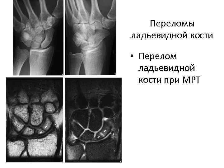 Переломы ладьевидной кости • Перелом ладьевидной кости при МРТ