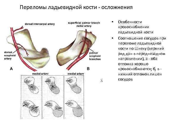 Переломы ладьевидной кости осложнения • • Особенности кровоснабжения ладьевидной кости Соотношение сосудов при переломе