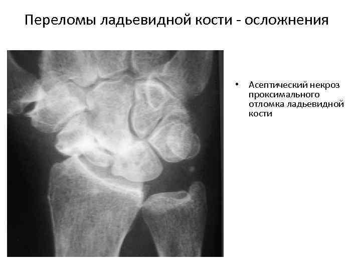 Переломы ладьевидной кости осложнения • Асептический некроз проксимального отломка ладьевидной кости