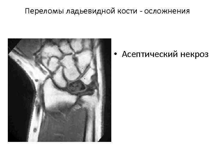Переломы ладьевидной кости осложнения • Асептический некроз