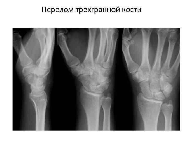 Перелом трехгранной кости