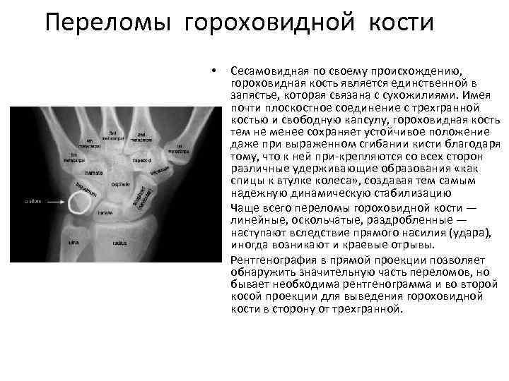 Переломы гороховидной кости • • • Сесамовидная по своему происхождению, гороховидная кость является единственной