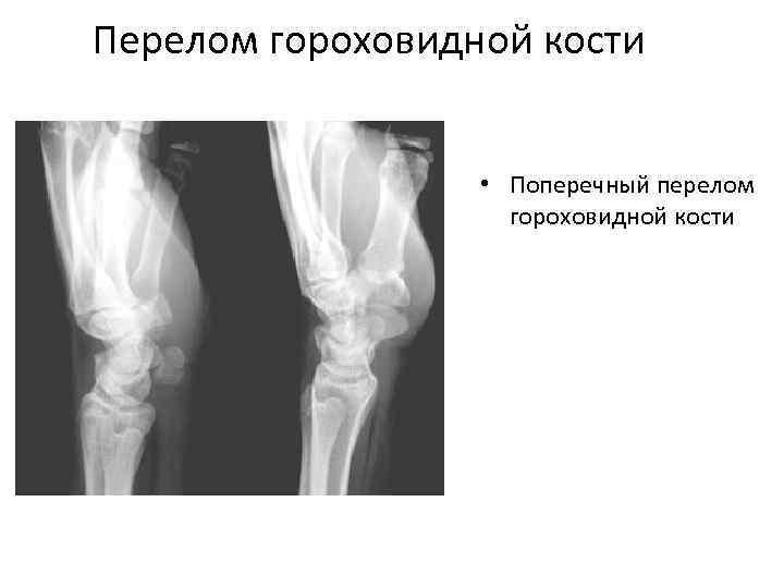 Перелом гороховидной кости • Поперечный перелом гороховидной кости