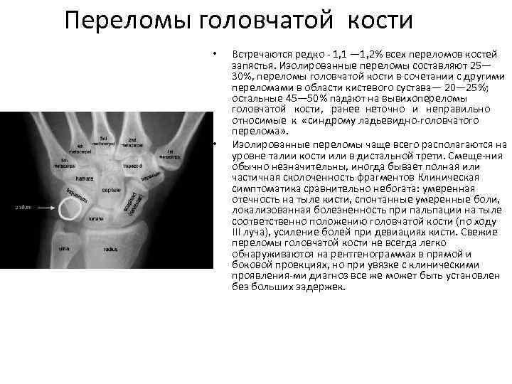 Переломы головчатой кости • • Встречаются редко 1, 1 — 1, 2% всех переломов