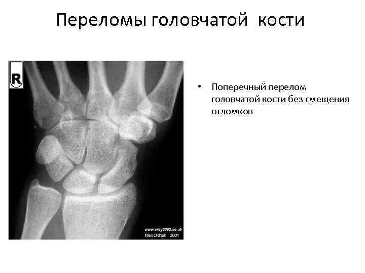Переломы головчатой кости • Поперечный перелом головчатой кости без смещения отломков