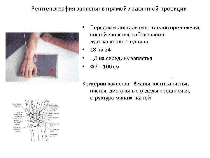 Рентгенография запястья в прямой ладоннной проекции • Переломы дистальных отделов предплечья, костей запястья, заболевания