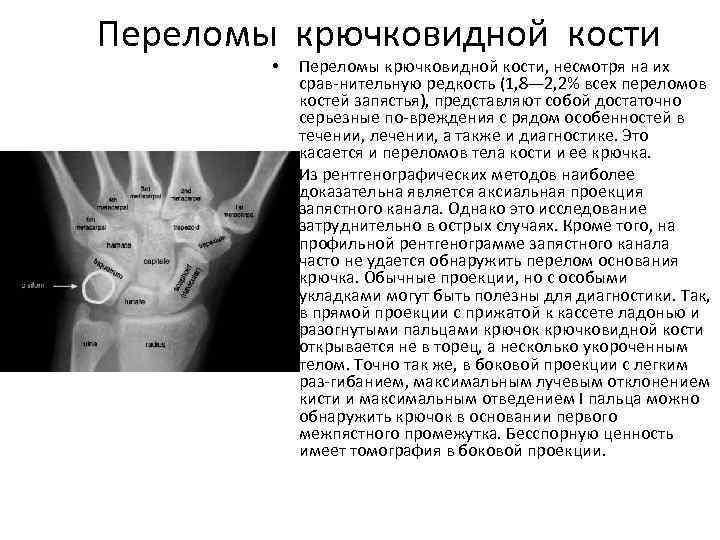 Переломы крючковидной кости • • Переломы крючковидной кости, несмотря на их срав нительную редкость
