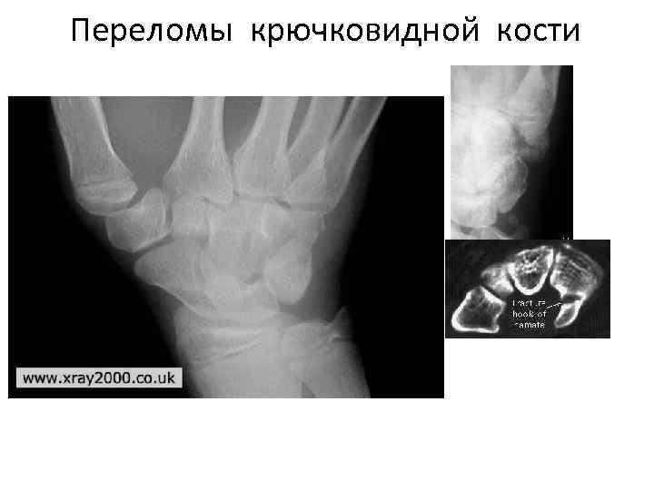 Переломы крючковидной кости