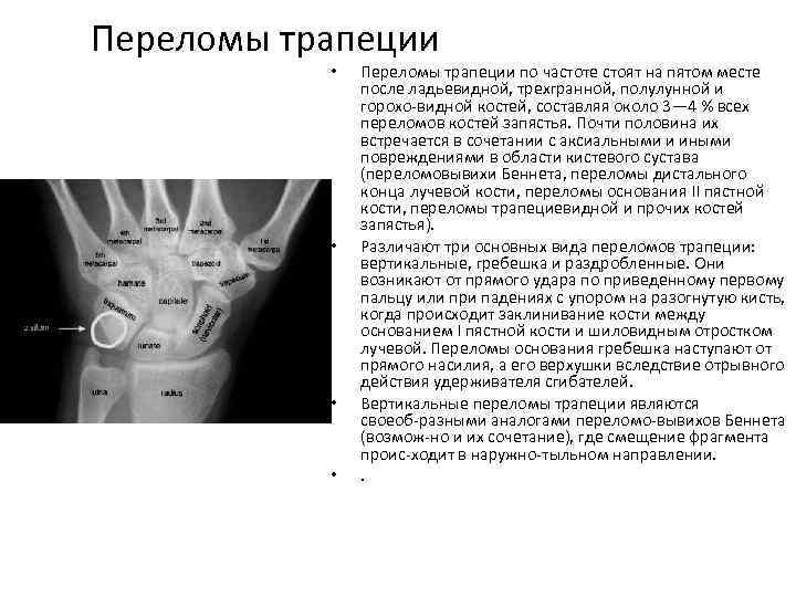 Переломы трапеции • • Переломы трапеции по частоте стоят на пятом месте после ладьевидной,