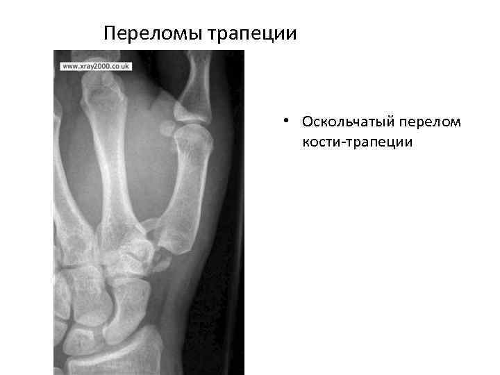 Переломы трапеции • Оскольчатый перелом кости трапеции