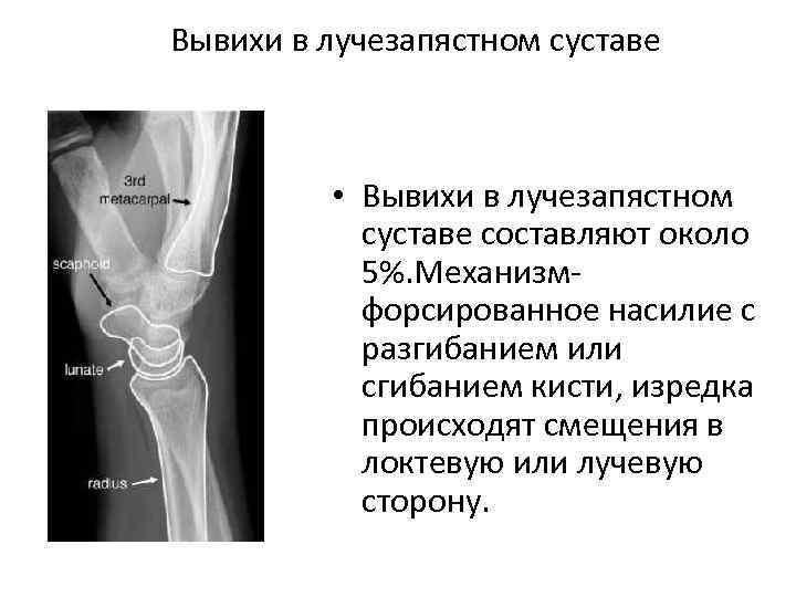 Вывихи в лучезапястном суставе • Вывихи в лучезапястном суставе составляют около 5%. Механизм форсированное