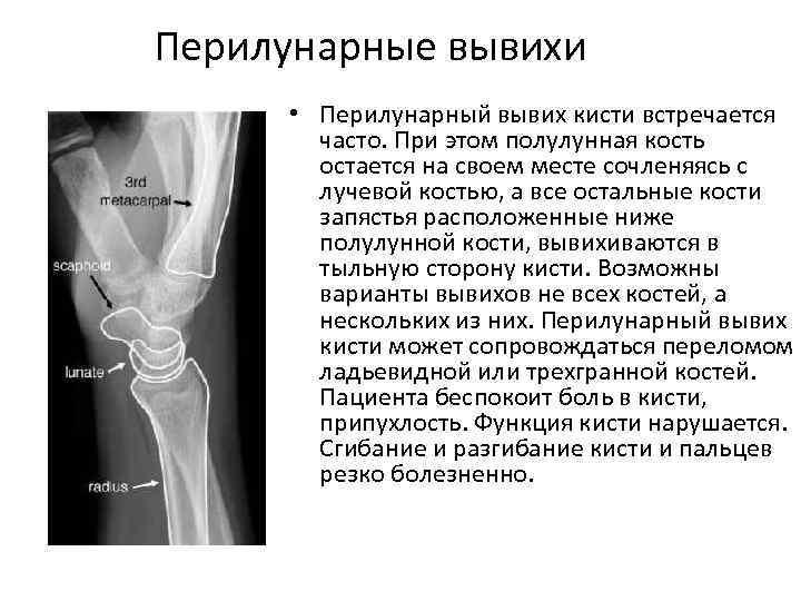 Перилунарные вывихи • Перилунарный вывих кисти встречается часто. При этом полулунная кость остается на