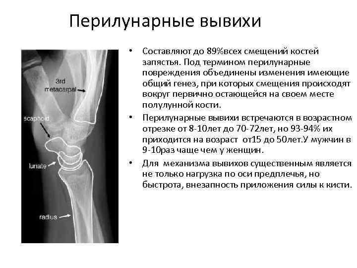 Перилунарные вывихи • Составляют до 89%всех смещений костей запястья. Под термином перилунарные повреждения объединены