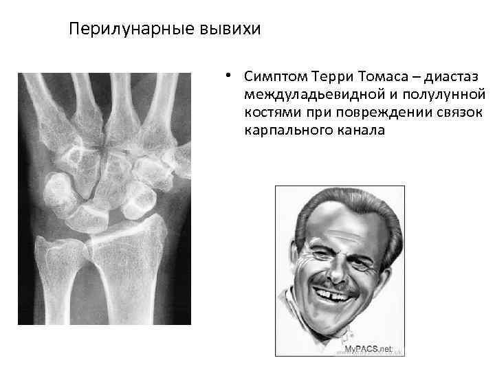 Перилунарные вывихи • Симптом Терри Томаса – диастаз междуладьевидной и полулунной костями при повреждении