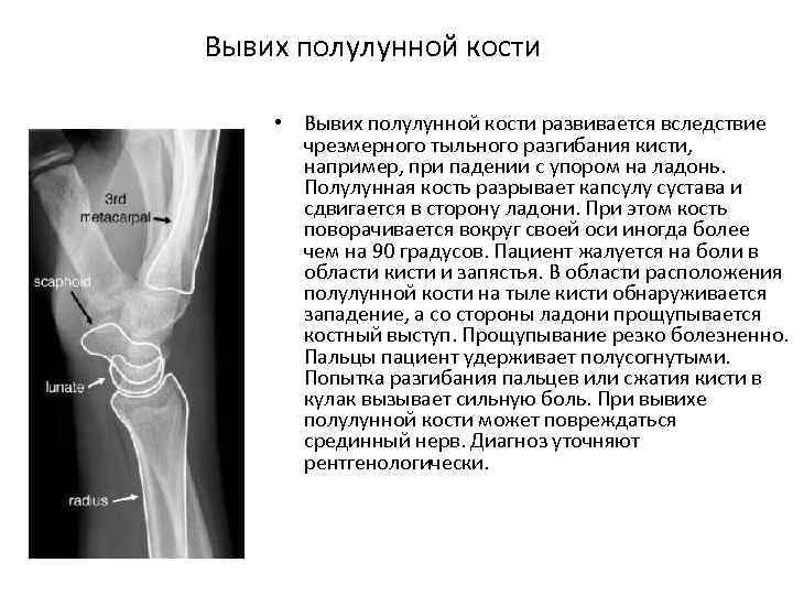 Вывих полулунной кости • Вывих полулунной кости развивается вследствие чрезмерного тыльного разгибания кисти, например,