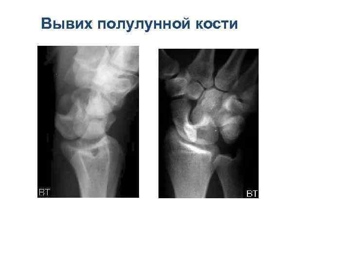 Вывих полулунной кости