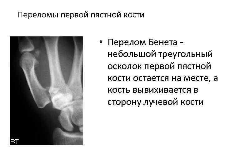 Переломы первой пястной кости • Перелом Бенета небольшой треугольный осколок первой пястной кости остается
