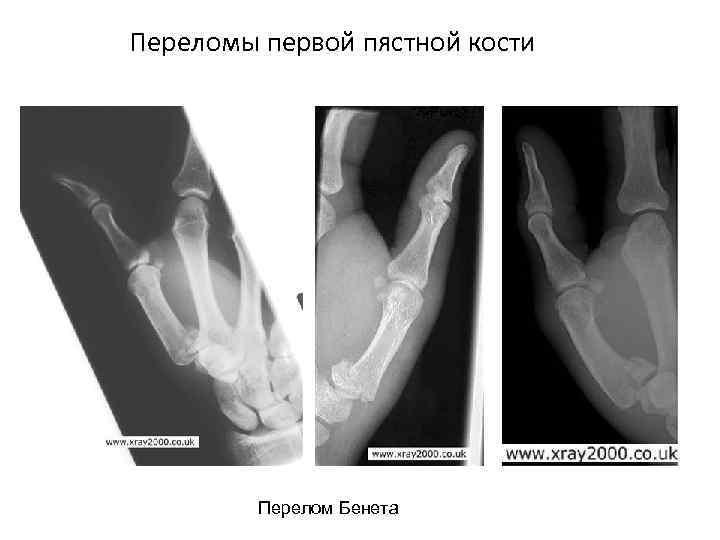 Переломы первой пястной кости Перелом Бенета