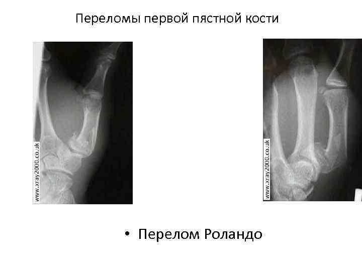 Переломы первой пястной кости • Перелом Роландо