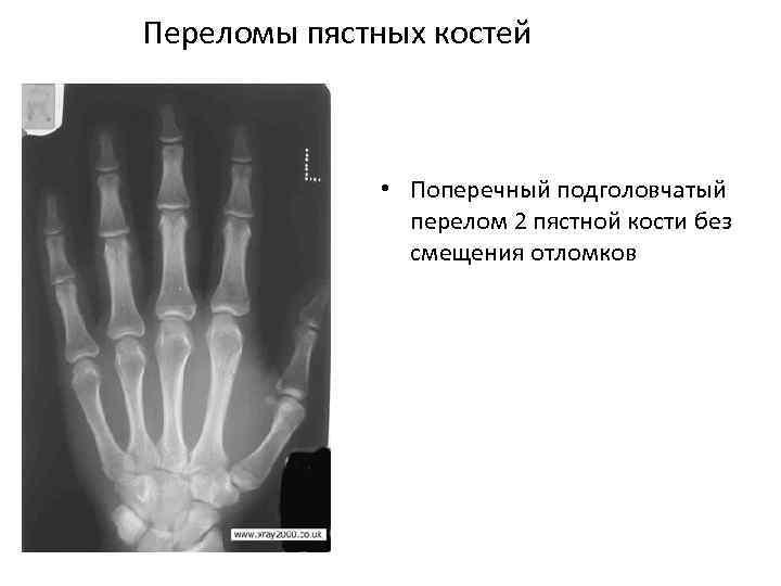 Переломы пястных костей • Поперечный подголовчатый перелом 2 пястной кости без смещения отломков