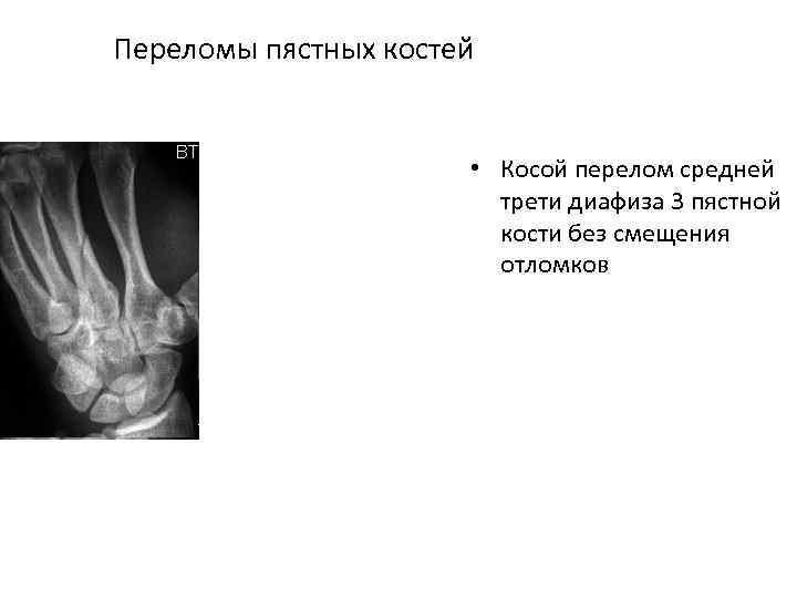 Переломы пястных костей • Косой перелом средней трети диафиза 3 пястной кости без смещения
