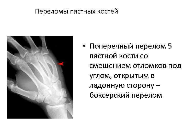Переломы пястных костей • Поперечный перелом 5 пястной кости со смещением отломков под углом,