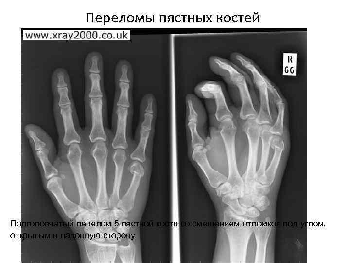 Переломы пястных костей Подголовчатый перелом 5 пястной кости со смещением отломков под углом, открытым