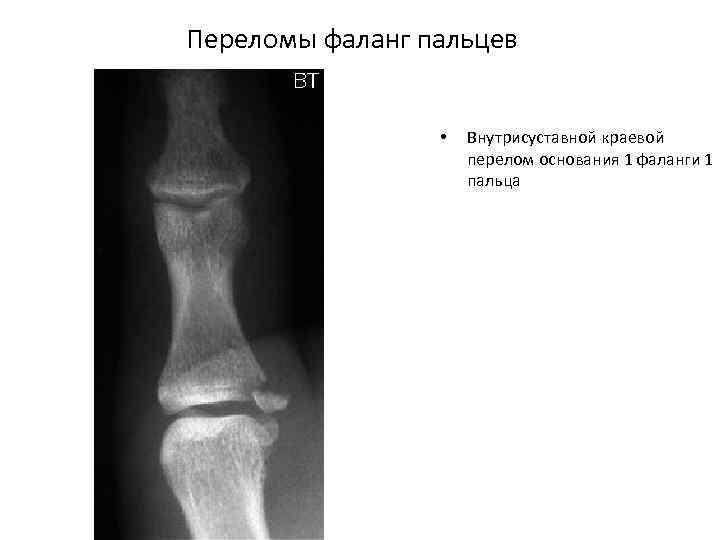 Переломы фаланг пальцев • Внутрисуставной краевой перелом основания 1 фаланги 1 пальца