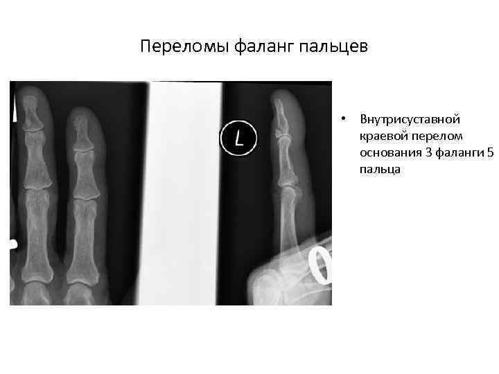 Переломы фаланг пальцев • Внутрисуставной краевой перелом основания 3 фаланги 5 пальца