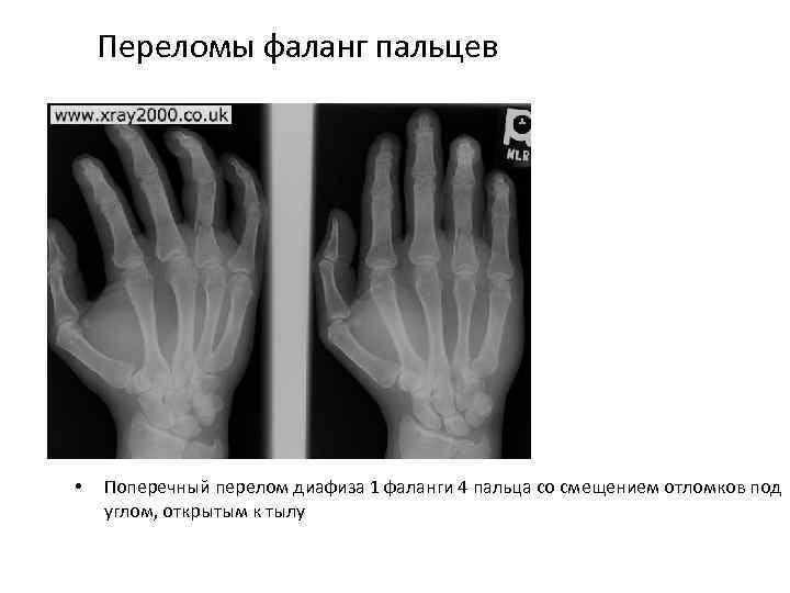 Переломы фаланг пальцев • Поперечный перелом диафиза 1 фаланги 4 пальца со смещением отломков