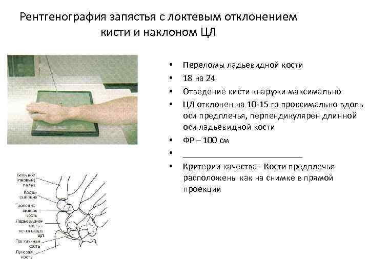 Рентгенография запястья с локтевым отклонением кисти и наклоном ЦЛ • • Переломы ладьевидной кости