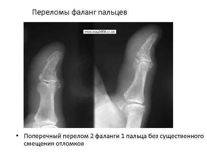 Переломы фаланг пальцев • Поперечный перелом 2 фаланги 1 пальца без существенного смещения отломков