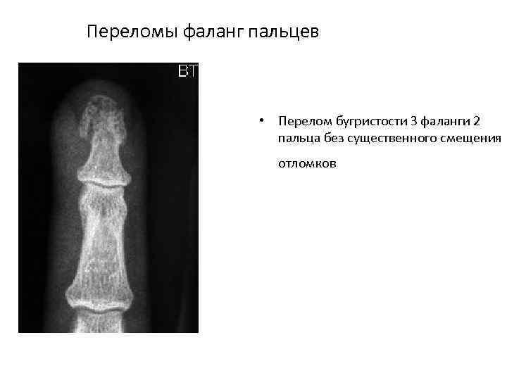 Переломы фаланг пальцев • Перелом бугристости 3 фаланги 2 пальца без существенного смещения отломков