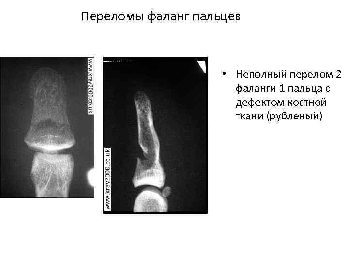 Переломы фаланг пальцев • Неполный перелом 2 фаланги 1 пальца с дефектом костной ткани