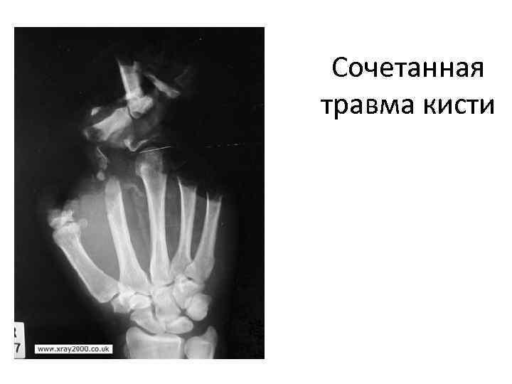 Сочетанная травма кисти