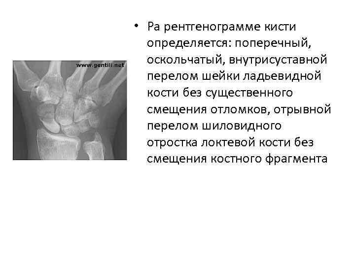 • Ра рентгенограмме кисти определяется: поперечный, оскольчатый, внутрисуставной перелом шейки ладьевидной кости без