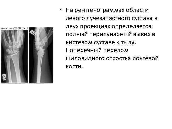 • На рентгенограммах области левого лучезапястного сустава в двух проекциях определяется: полный перилунарный