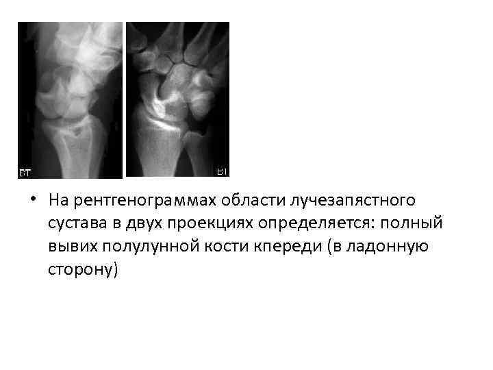 • На рентгенограммах области лучезапястного сустава в двух проекциях определяется: полный вывих полулунной