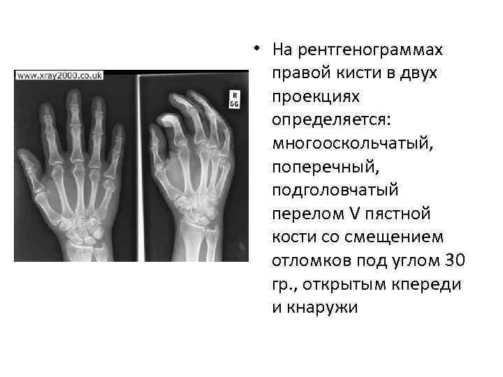 • На рентгенограммах правой кисти в двух проекциях определяется: многооскольчатый, поперечный, подголовчатый перелом