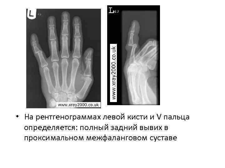 • На рентгенограммах левой кисти и V пальца определяется: полный задний вывих в