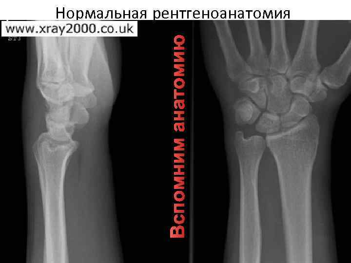 Вспомним анатомию Нормальная рентгеноанатомия