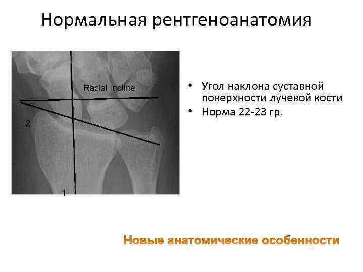 Нормальная рентгеноанатомия • Угол наклона суставной поверхности лучевой кости • Норма 22 23 гр.