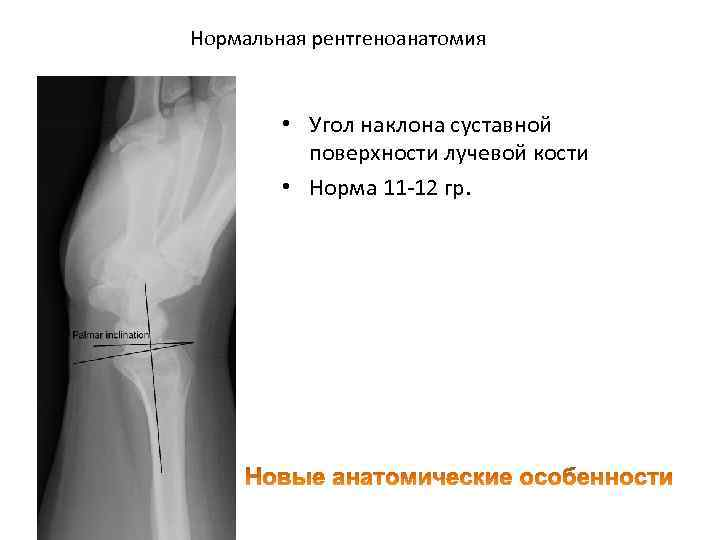 Нормальная рентгеноанатомия • Угол наклона суставной поверхности лучевой кости • Норма 11 12 гр.
