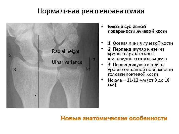 Нормальная рентгеноанатомия • Высота суставной поверхности лучевой кости • 1. Осевая линия лучевой кости