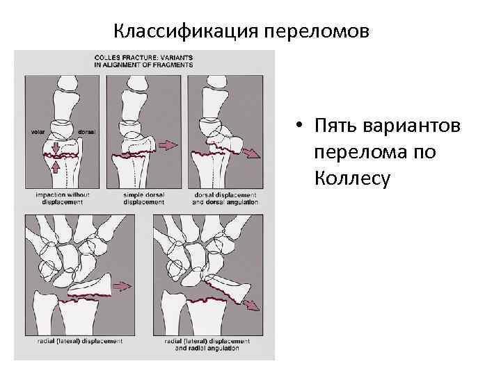 Классификация переломов • Пять вариантов перелома по Коллесу
