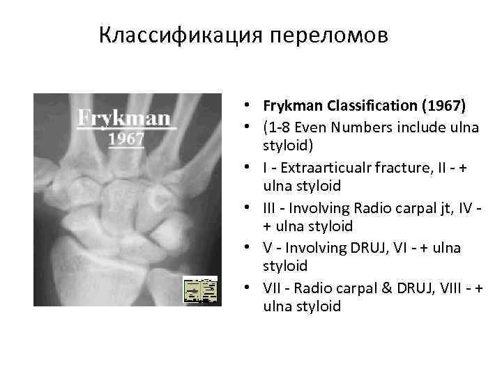 Классификация переломов • Frykman Classification (1967) • (1 8 Even Numbers include ulna styloid)