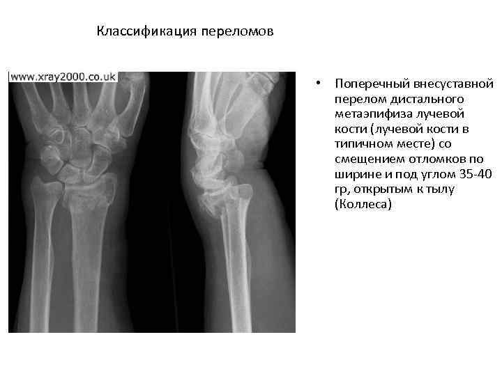 Классификация переломов • Поперечный внесуставной перелом дистального метаэпифиза лучевой кости (лучевой кости в типичном