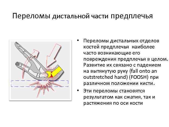Переломы дистальной части предплечья • Переломы дистальных отделов костей предплечья наиболее часто возникающие его