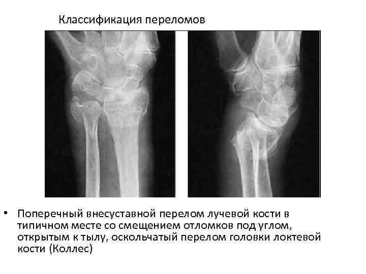 Классификация переломов • Поперечный внесуставной перелом лучевой кости в типичном месте со смещением отломков